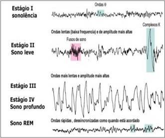 figura_5_-_estagios_sono